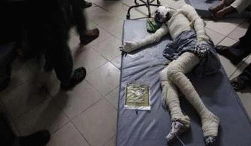 Một nạn nhân bị bỏng toàn thân đang được chữa trị trong bệnh viện.(Ảnh: Reuters)