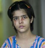 cô bé Twinkle Dwivedi (Ấn Độ) một trường hợp khóc ra máu
