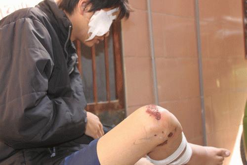 Nhiều trường hợp bệnh nhân bị tai nạn xe cũng tìm đến ông Thân nhờ chữa trị. Ảnh: L.V.
